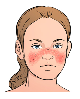 Image result for lupus rash picture cartoon